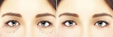 Solución a las bolsas palpebrales y a las arrugas oculares