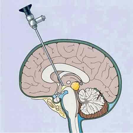 En la imagen, recreación de una neuroendoscopia.
