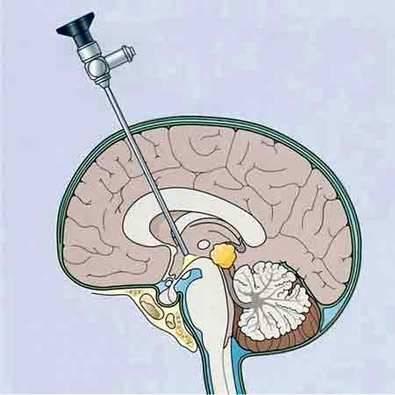 La neuroendoscopia permite realizar cirugía mínimamente invasiva en tumores cerebrales