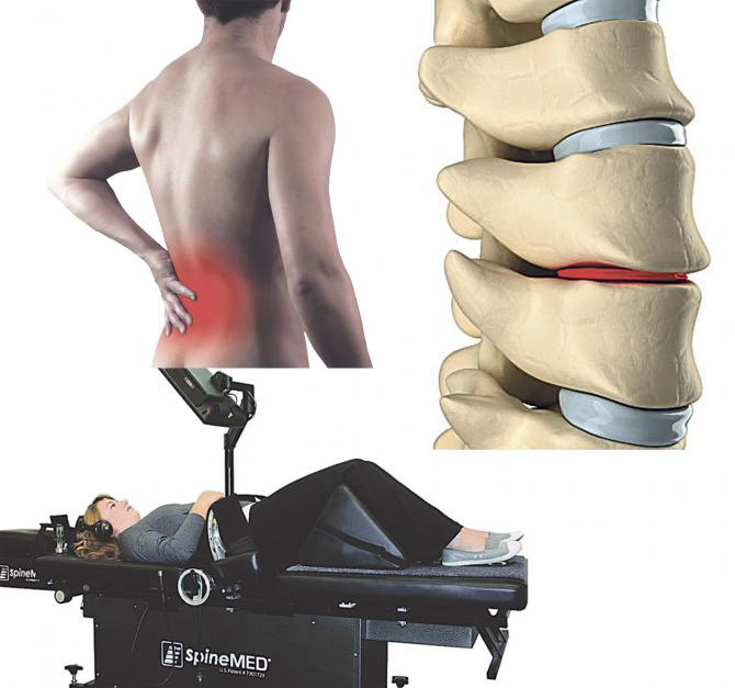 La descompresión axial vertebral es una técnica no quirúrgica diseñada para tratar y descomprimir los discos intervertebrales dañados, proporcionando una alternativa no quirúrgica  y libre de fármacos para los pacientes que sufren protrusiones,  hernias  discales, ciática, estenosis  y degeneración discal.