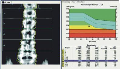 Nuevo 'software' para la medición de la densidad ósea