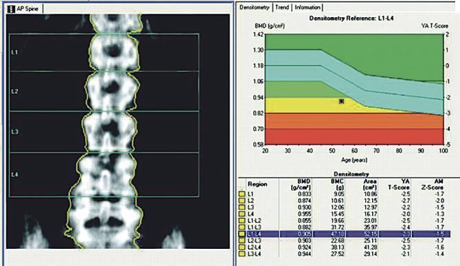 En la figura superior, podemos apreciar una densitometría ósea.
