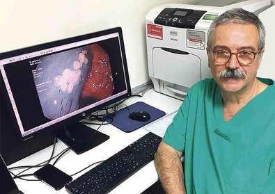 La Asociación Americana del Cáncer rebaja a los 45 años los programas de cribado de cáncer de colon en personas sanas exentas de riesgo