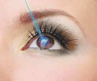 El láser selectivo para la trabeculoplastia es una alternativa sencilla y cómoda contra el glaucoma
