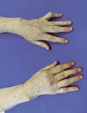 Las principales enfermedades reumáticas afectan en mayor medida a las mujeres que a los hombres